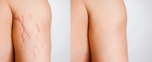 how to get rid of purple stretch marks on thighs,